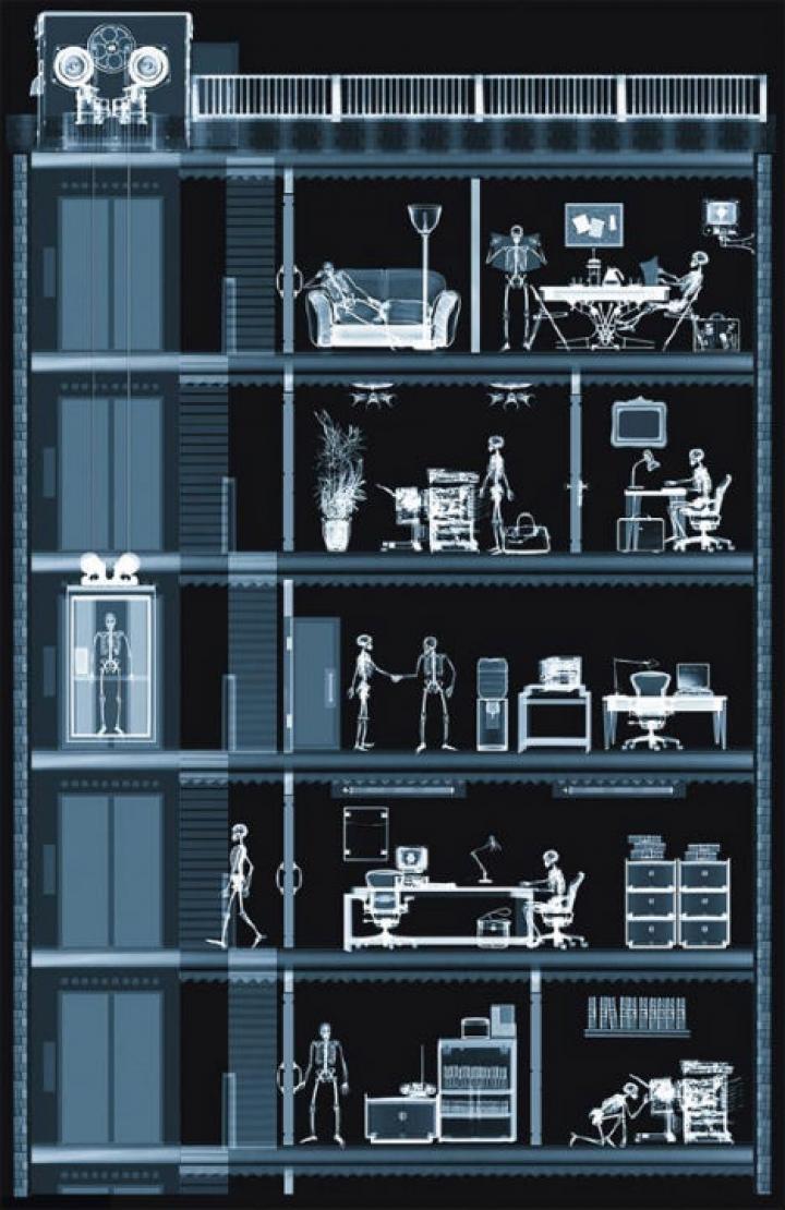 x-ray-φωτογραφία-4